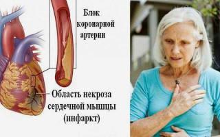Застойная сердечная недостаточность симптомы и лечение