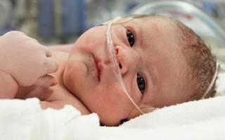 Ишемия у ребенка при рождении