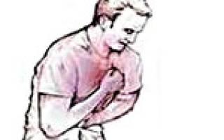 Диагноз нестабильная стенокардия