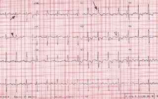 Давление в легочной артерии эхокг