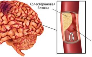 Внутричерепное давление болит голова как лечить