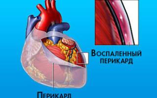 Жидкость в сердце причины и лечение