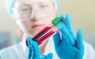 Если немного повышены лейкоциты в крови
