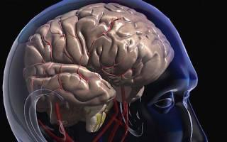 Как лечить сотрясение головного мозга