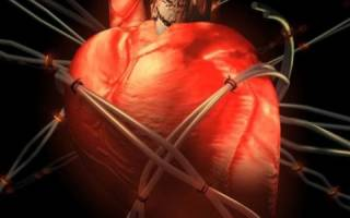 Аритмия и ишемия сердца