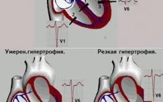Гипертрофия миокарда правого желудочка сердца что это такое