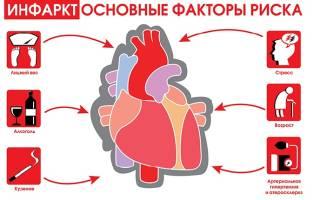 Инфаркт миокарда передне боковой