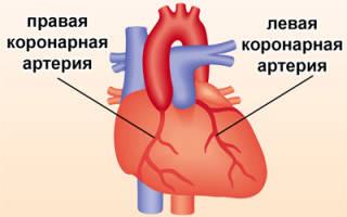 Ибс инфаркт миокарда нижней стенки