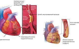Где работать после инфаркта миокарда