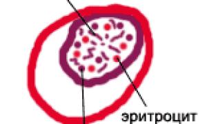 Инфаркт миокарда описание макропрепарата