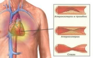 Гомеопатия при ишемии сердца
