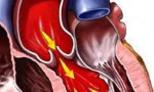 Изменение гемодинамики при аортальной недостаточности