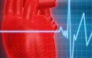 Дифференциальная диагностика мерцательной аритмии