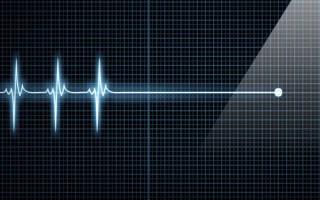 Как выглядит умерший человек от инфаркта