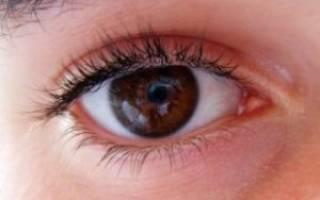 Большое глазное давление как снизить