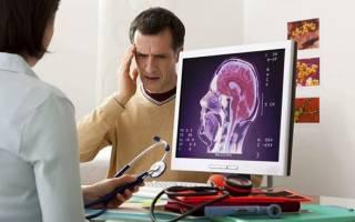 Внутричерепное давление и сосудистые препараты
