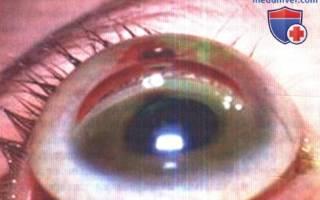Глазное давление как измерить у детей