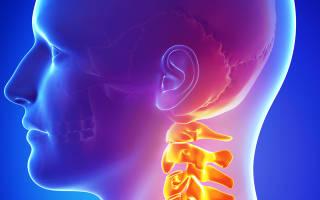 Давление в голове при остеохондрозе