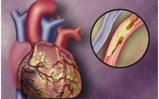 Атеросклеротический коронарокардиосклероз причина смерти