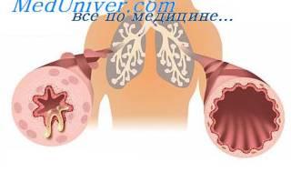 Глюкокортикоидная недостаточность симптомы