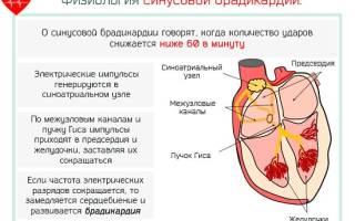 Болезни сердца брадикардия описание