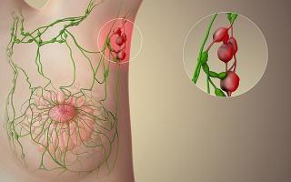 Воспаление лимфоузлов при месячных