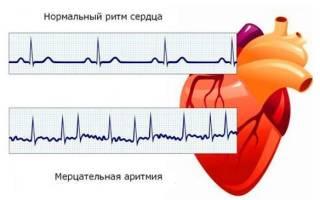 Как быстро убрать аритмию сердца в домашних условиях