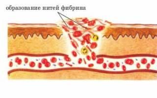 Как быстро может образоваться тромб