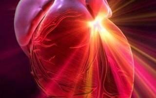 Жалобы при остром инфаркте миокарда
