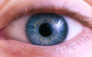 Зигзаги в глазах что это значит