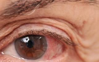 Как жить с глаукомой