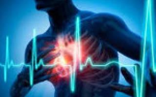 Давление при кардиогенном шоке