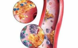 Атеросклероз симптомы лечение