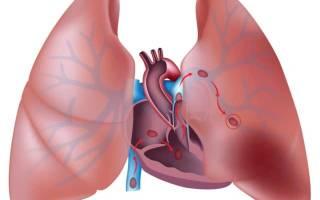 Давление в легочной артерии 100
