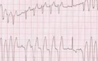 Дыхательная аритмия у собак норма