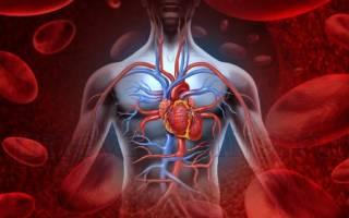 Инфаркт миокарда осложнения пневмония