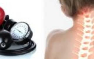 Как влияет остеохондроз на артериальное давление