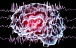 К каким заболеваниям относится эпилепсия