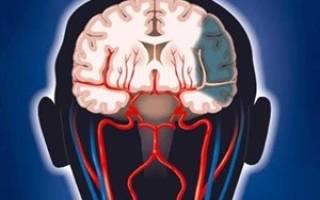Для улучшения венозного оттока головного мозга