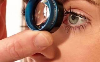 Бывает ли глазное давление