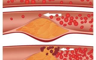 Атеросклероз народное лечение
