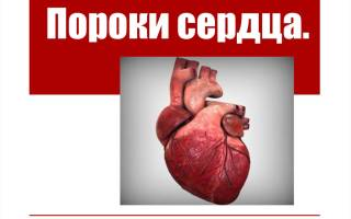 Врожденные пороки сердца этиология патогенез