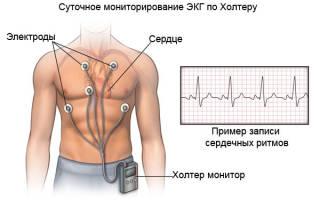 Боль в груди и головокружение